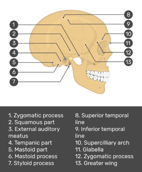 test yourself image for the lateral skull bone markings with answers shown: zygomatic process, squamous part, external auditory meatus, tempanic part, mastoid part, mastoid process, styloid process, superior temporal line, inferior temporal line, supercilliary arch, glabella, zygomatic process, greater wing