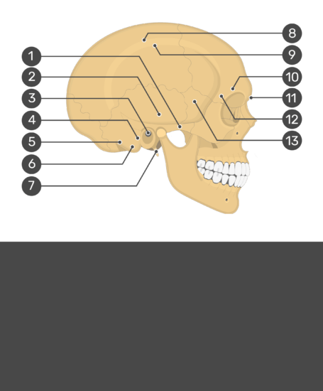Test yourself image for the lateral view of the markings of the skull with answers hidden