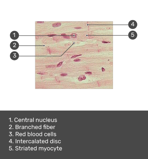 Test yourself image for the micrograph of cardiac muscle tissue with answers shown; central nucleus, branched fiber, red blood cells, intecalated disc, striated myocyte