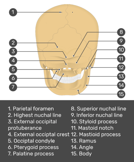 Test yourself image for the posterior view of the skull bone markings with answers shown; parietal foramen, highest nuchal line, external occipital protuberance, external occipital crest, occipital condyle, pterygoid process, superior nuchal line, inferior nuchal line, styloid process, mastoid notch, mastoid process, ramus, angle,body