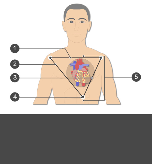 Test yourself image for the standard bipolar ecg lead electrodes with answers hidden