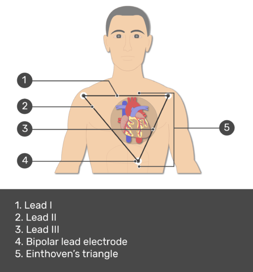 Test yourself image for the standard bipolar ecg lead electrodes with answers shown; lead i, lead ii, lead iii, bipolar lead electrode, einthoven's triangle.