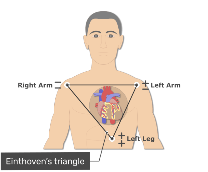 The einthroven's triangle animation slide 14