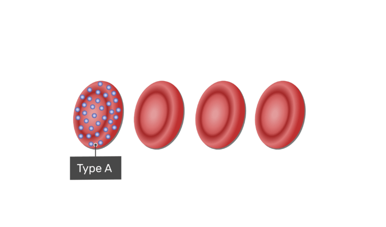 Type A blood type with A antigens