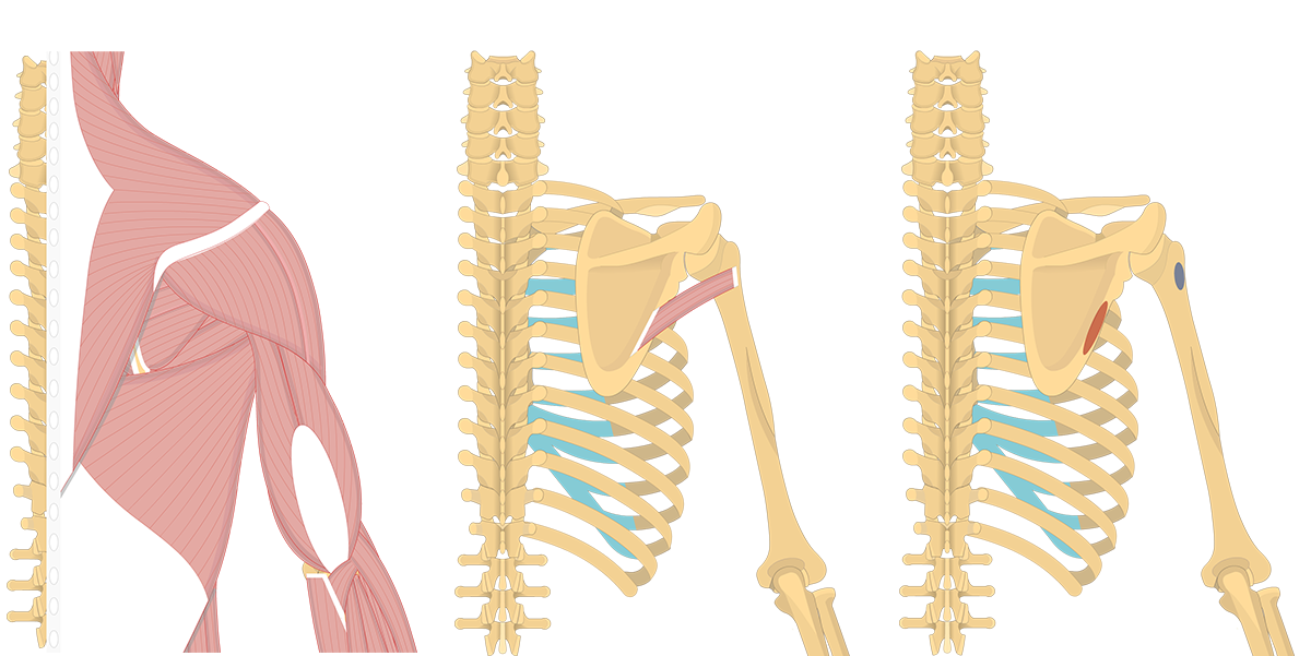 Featured image showing three images of the posterior back and arm with trees minor and origin and insertion of teres minor.