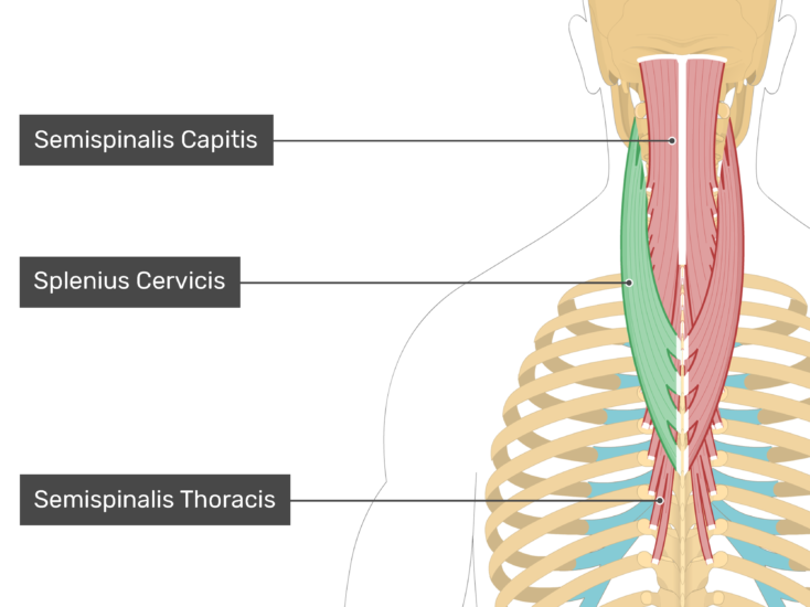 Posterior view of the occipital region of the skull, cervical and thoracic regions of the spinal column, upper arm, scapulae and the deepest layer of the back and neck muscles. The labelled muscles are Semispinalis Capitis, Splenius Cervicis (highlighted in green) and Semispinalis Thoracis.