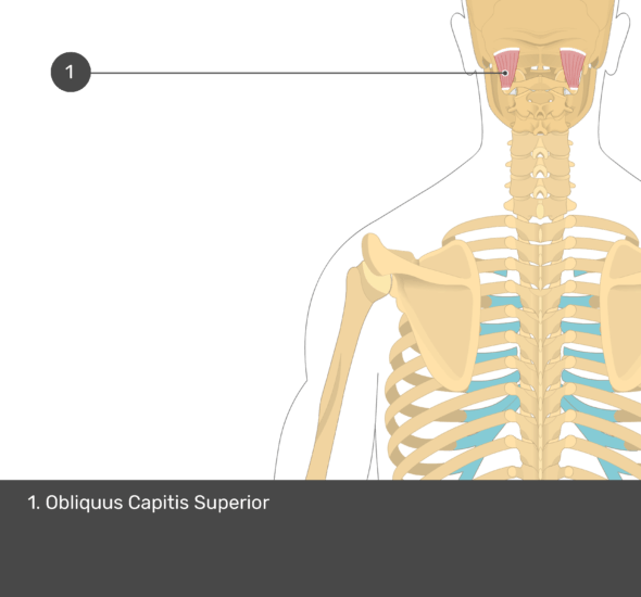 A quiz image of the posterior view of the occipital region of the skull, cervical and thoracic regions of the spinal column, upper arm, scapulae and the deeper muscle layer. The only muscle labelled 1. Is Obliquus Capitis Superior.