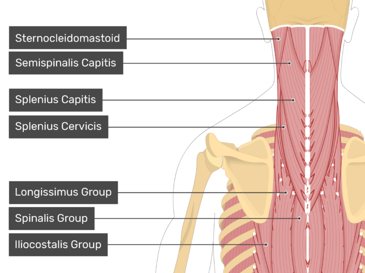 Posterior view of the occipital region of the skull, cervical and thoracic regions of the spinal column, upper arm, scapulae and a deeper layer of the attached muscles. The labelled muscles are Sternocleidomastoid, Semispinalis Capitis, Splenius Capitis, Splenius Cervicis, Longissimus Group of muscles, Spinalis Group and Iliocostalis Group.