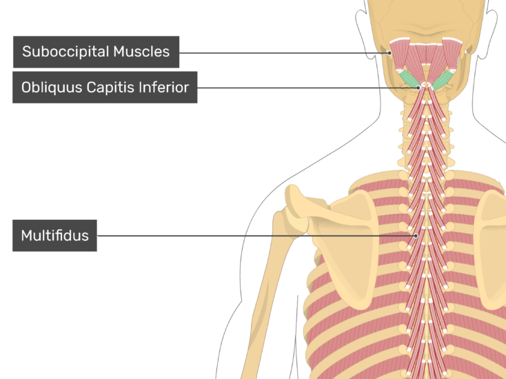 Posterior view of the occipital region of the skull, cervical and thoracic regions of the spinal column, upper arm, scapulae and a deeper layer of the attached muscles. The labelled muscles are Suboccipital Muscles, Qbliquus Capitis Inferior (highlighted in green) and Multifidus.