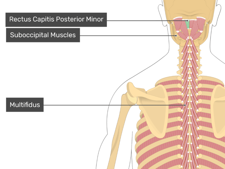 Posterior view of the occipital region of the skull, cervical and thoracic regions of the spinal column, upper arm, scapulae and a deeper layer of the attached muscles. The labelled muscles are Rectus Capitis Posterior Minor (highlighted in green) Suboccipital Muscles and Multifidus.