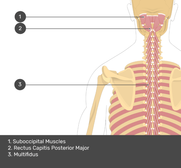 A quiz image of the posterior view of the occipital region of the skull, cervical and thoracic regions of the spinal column, upper arm, scapulae and the deeper muscle layer. The muscles of the back and neck are labelled 1-3. The answers at the bottom are as follows 1. Suboccipital Muscles 2. Rectus Capitis Posterior Major 3. Multifidus.