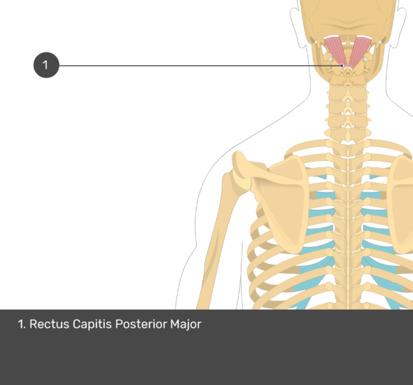 A quiz image of the posterior view of the occipital region of the skull, cervical and thoracic regions of the spinal column, upper arm, scapulae and the deeper muscle layer. The only muscle labelled 1. Is Rectus Capitis Posterior Major.