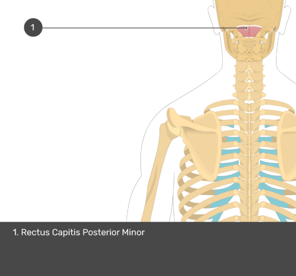 A quiz image of the posterior view of the occipital region of the skull, cervical and thoracic regions of the spinal column, upper arm, scapulae and the deeper muscle layer. The only muscle labelled 1. Is Rectus Capitis Posterior Minor.