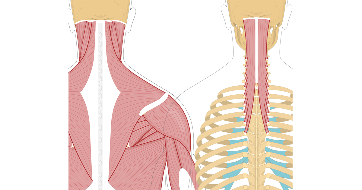 Featured image showing two views of the posterior view of the occipital region of the skull, cervical and thoracic regions of the spinal column, upper arm and scapulae. The image on the left shows the bony elements and the muscles of the back and next, the image on the right shows isolated Semispinalis Capitis Muscle.