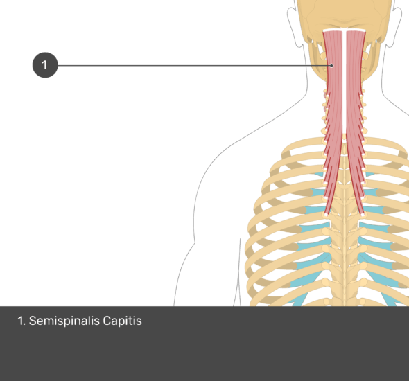 A quiz image of the posterior view of the occipital region of the skull, cervical and thoracic regions of the spinal column, upper arm, scapulae and the deeper muscle layer. The only muscle labelled 1. Is Semispinalis Capitis.