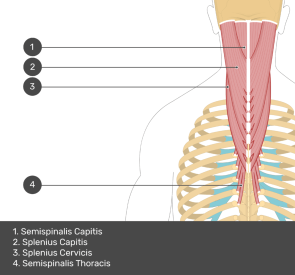 A quiz image of the posterior view of the occipital region of the skull, cervical and thoracic regions of the spinal column, upper arm, scapulae and the deeper muscle layer. The muscles of the back and neck are labelled 1-4. The answers at the bottom are as follows 1. Semispinalis Capitis 2. Splenius Capitis 3. Splenius Cervicis 4. Semispinalis Thoracis.