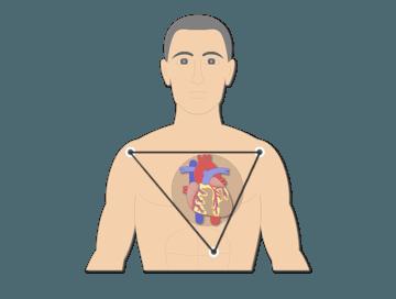 standard bipolar ecg lead electrodes - featured image