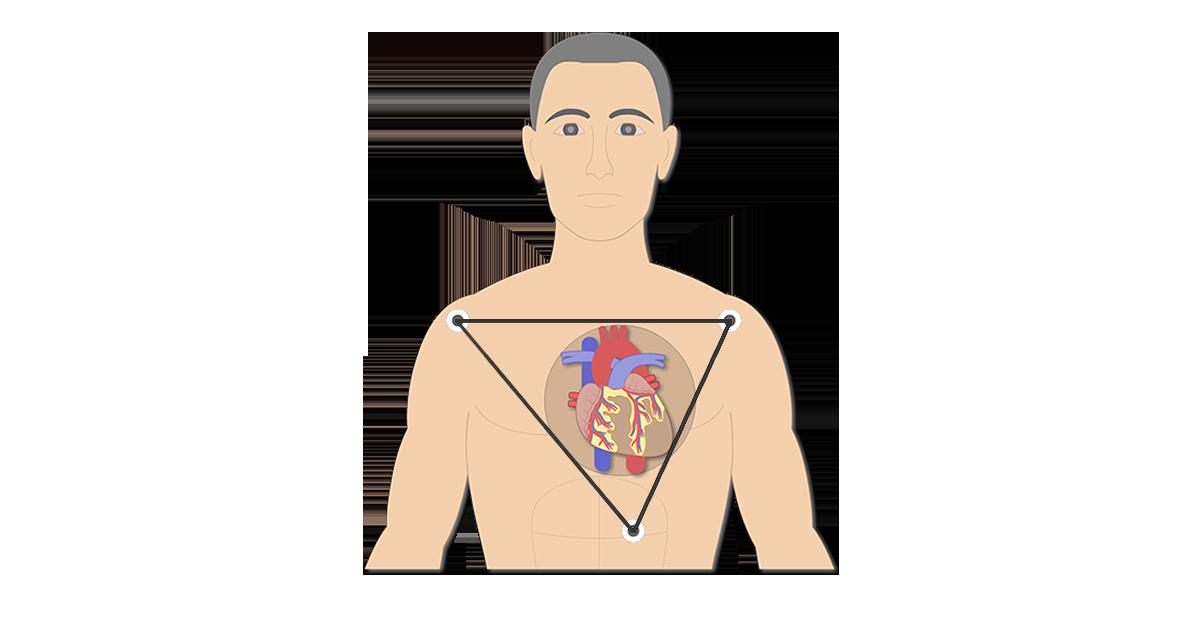 Standard Bipolar ECG Lead Electrodes